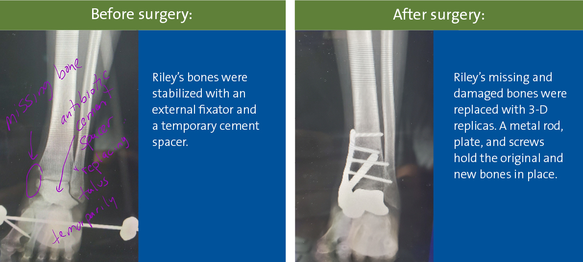 X-rays before and after 3-D talus replacement