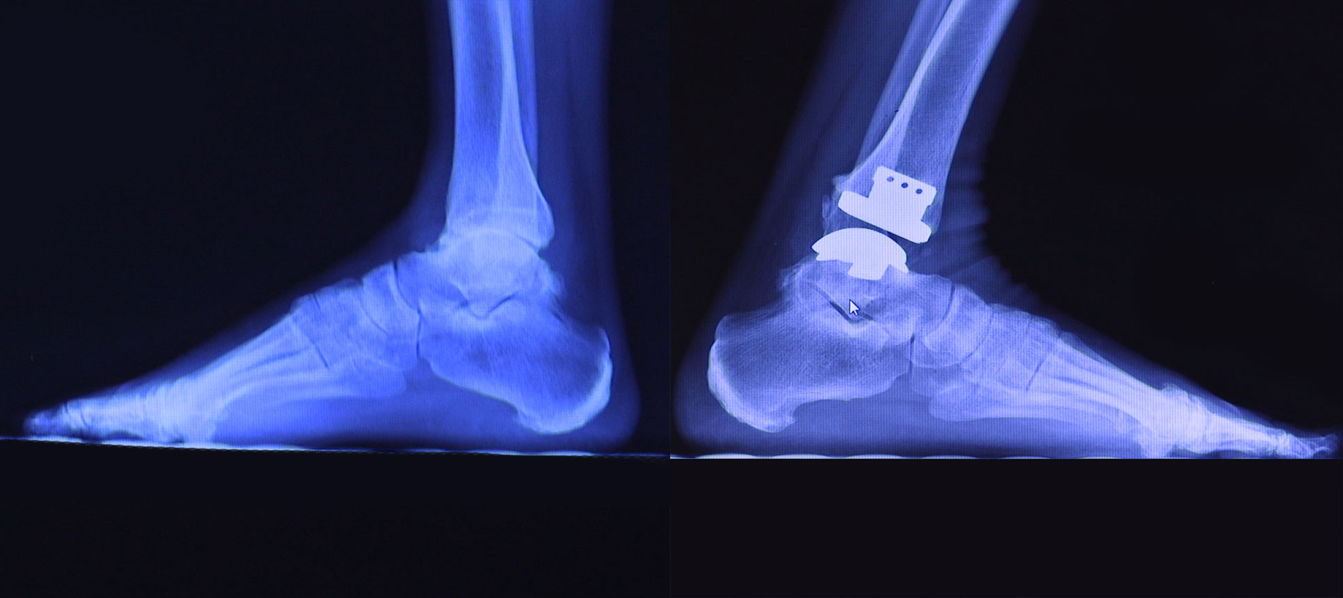 An x-ray taken after Mr. Ashwell's shows his right ankle before surgery and his left ankle after surgery.