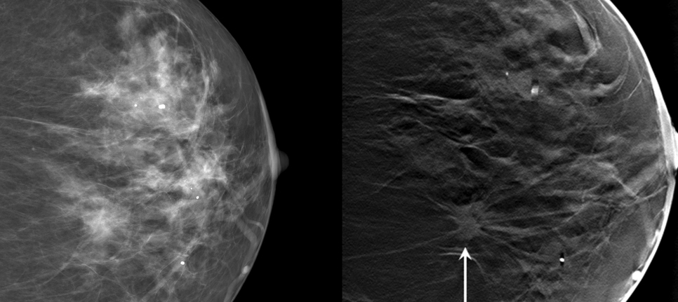 What Is 3 D Mammography Duke Health
