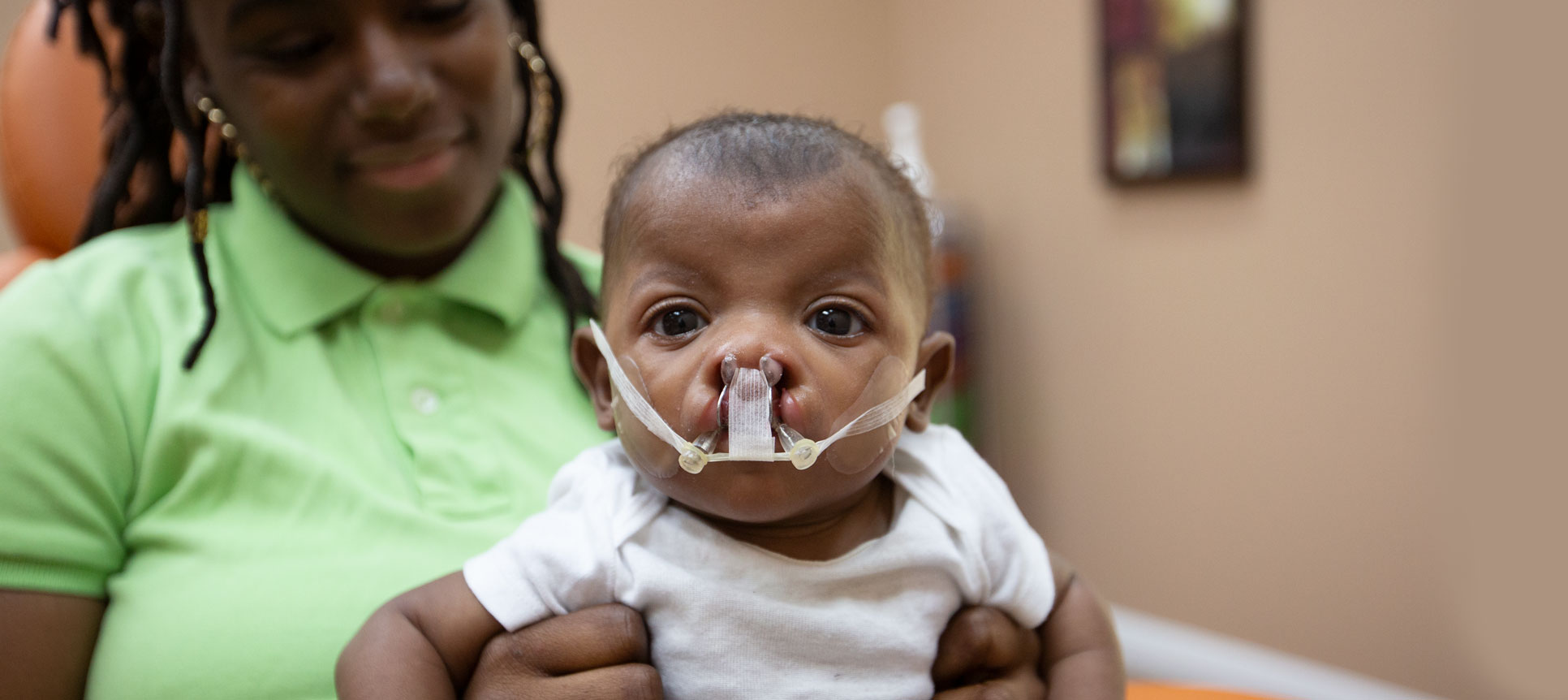 The NAM device slowly brings gum and lip segments together to reduce the number of surgeries required to fix a cleft. Results are more symmetrical when using a NAM device.
