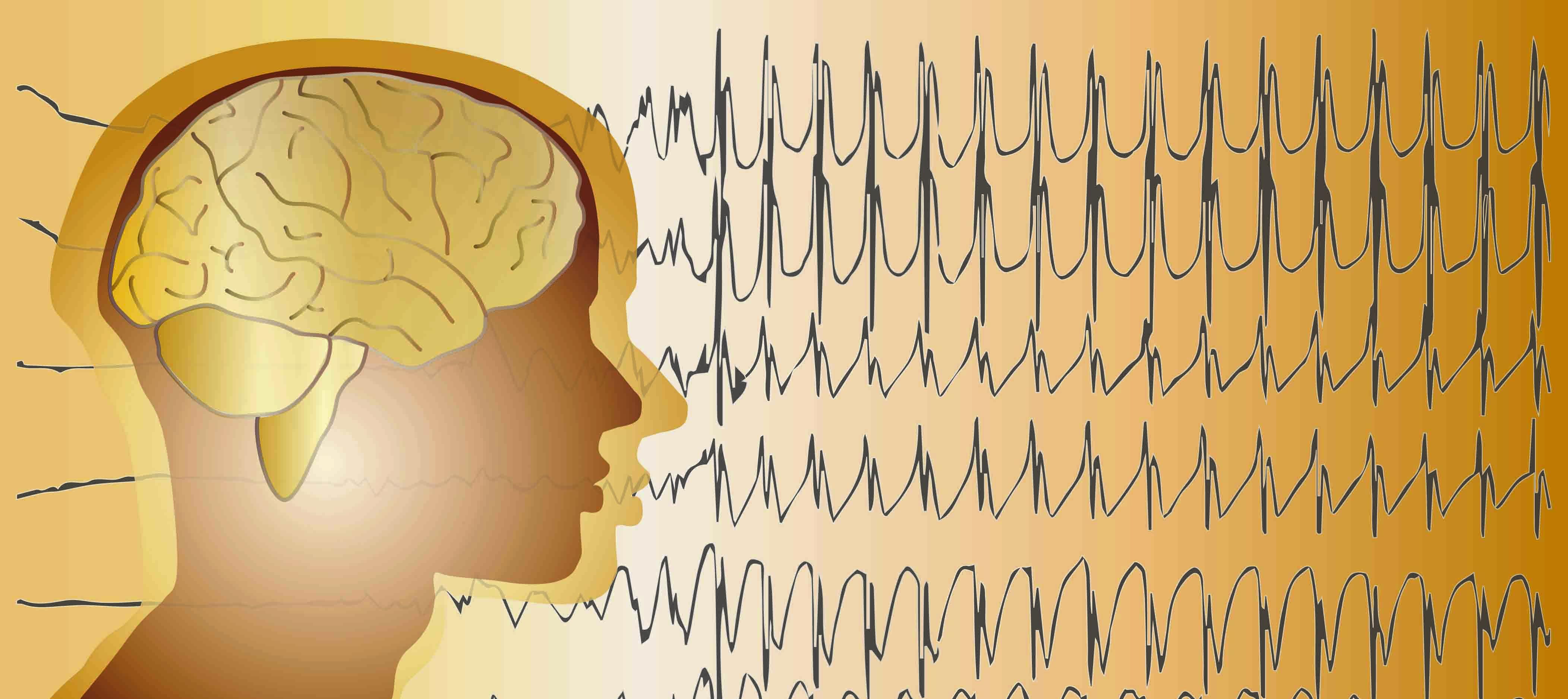 Epilepsy treatment at Duke