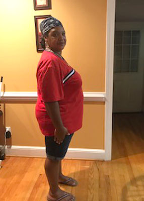 Tracie Green before weight loss surgery