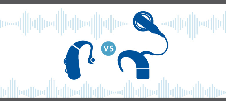 Hearing Aids vs. Cochlear Implants