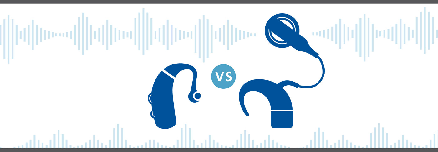 Hearing Ads vs Cochlear Implants